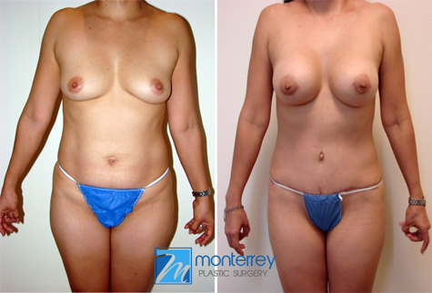 Mommy Makeover results by Dr. Josue Lara Ontiveros from Monterrey Plastic Surgery.