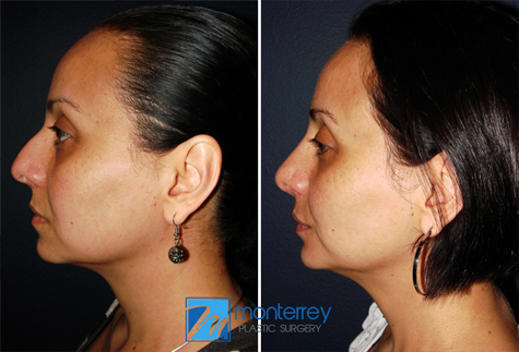 Rhinoplasty by Dr. Josue Lara Ontiveros from Monterrey Plastic Surgery.