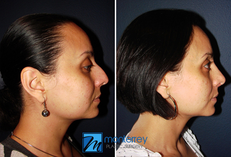 Rhinoplasty results by Dr. Josue Lara Ontiveros from Monterrey Plastic Surgery.