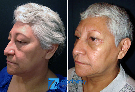 Blepharoplasty results by Dr. Josue Lara Ontiveros, M.D. from Monterrey Plastic Surgery.