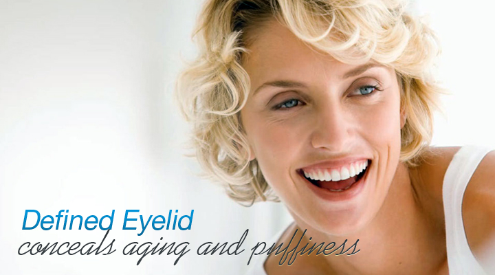 Blepharoplasty (eyelid surgery) helps Monterrey Mexico patients renew their eye area.