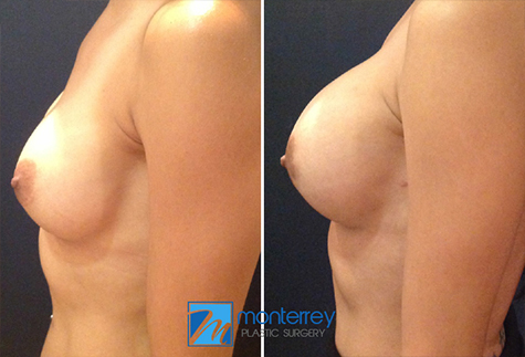 Breast Augmentation results by Dr. Josue Lara Ontiveros, M.D. from Monterrey Plastic Surgery.