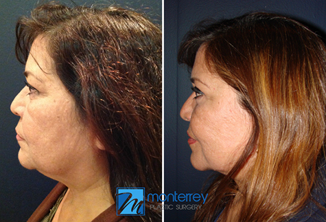 Face Lift results by Dr. Josue Lara Ontiveros from Monterrey Plastic Surgery.